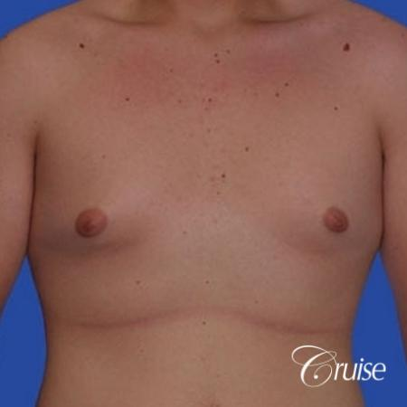 mild gynecomastia with puffy nipple from puberty - Before Image 1