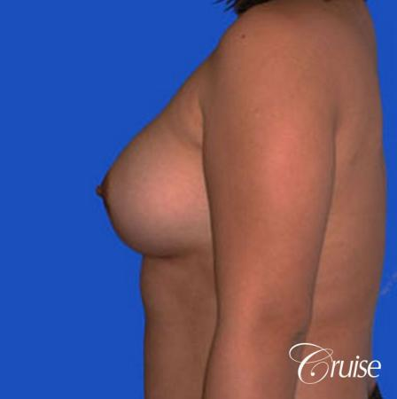 left breast capsular contracture before and after photos -  After Image 2