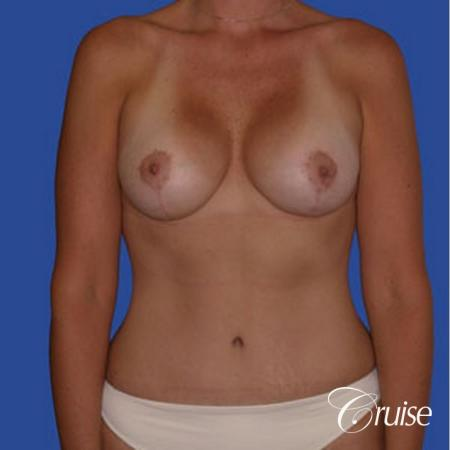 best scar for mommy make over breast lift tummy tuck -  After Image 1