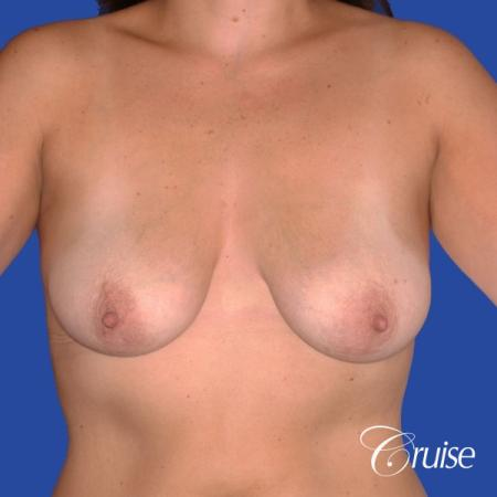 best results for breast lift surgeon in Newport Beach - Before Image 1