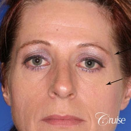 best temple lift facial rejuvenation to brighten eyes - Before Image