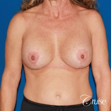 best high profile silicone breast lift 425cc -  After Image 1