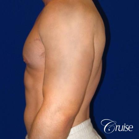 Pictures of young bodybuilder with gynecomastia -  After Image 3