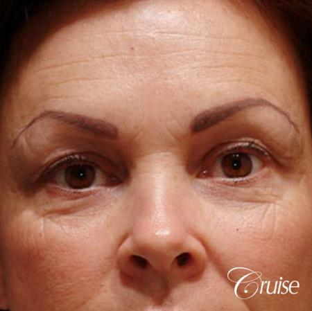 Blepharoplasty - Lower - Before Image