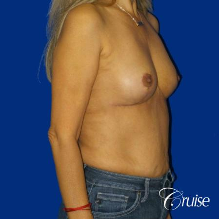 Best Breast reduction results and recovery -  After Image 5