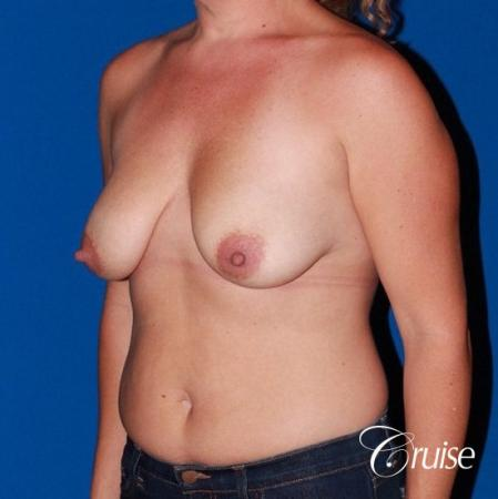 best results for breast lift anchor with saline implants - Before Image 3