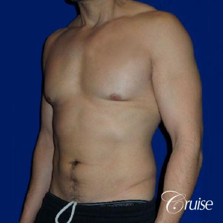 Type 3 Skin Laxity Gynecomastia with Nipple Elevation - Before and After 3