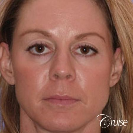 Fat Transfer - Temple, Tear Trough, Lower-Lids, Cheeks - After Image