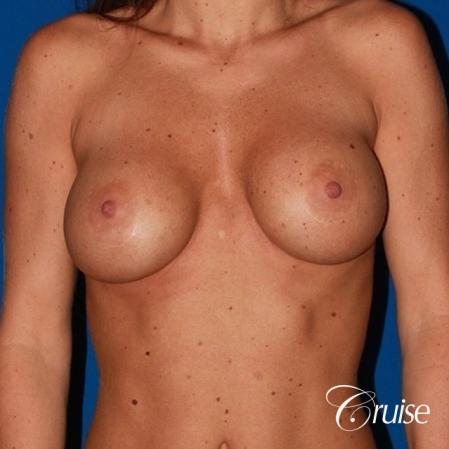 breast reconstruction better cleavage and capsulectomy - Before Image 1