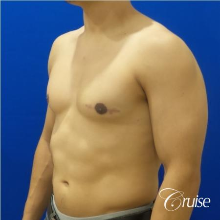 gynecomastia photos of an adult with overdeveloped breast -  After Image 2