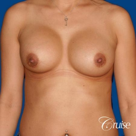 saline capsular contracture breast revision pictures - Before Image 1