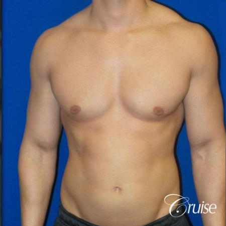 Best before and after gynecomastia pictures -  After Image 1