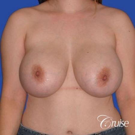 best revision Breast Lift with saline implants - Before Image 1