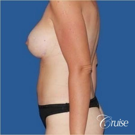best mommy make over scars on massive weight loss silicone -  After Image 2
