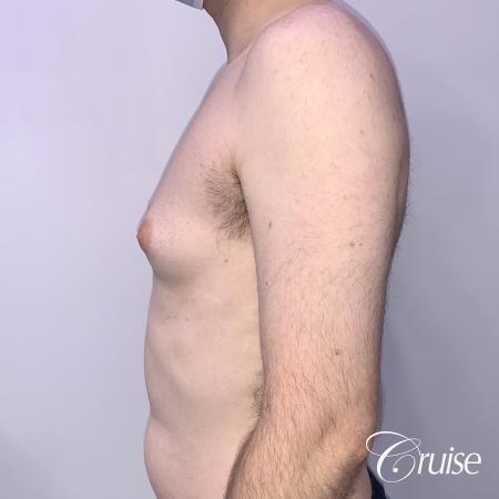 Gynecomastia: Patient 128 - Before 2