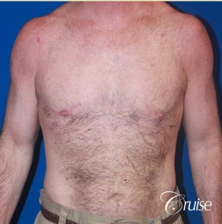 extended pa incision on gynecomastia patient -  After Image 1
