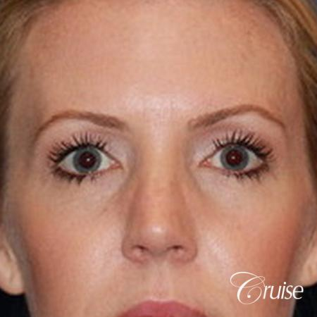 best upper eye lid results - Before Image 1
