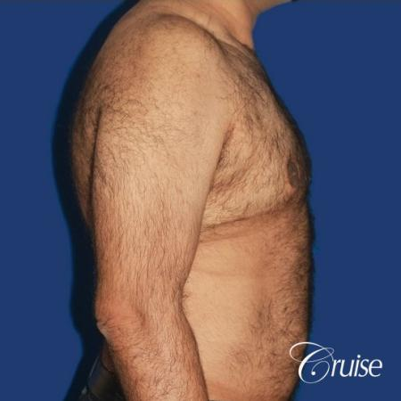 40 year old with severe gynecomastia results - After Image 3