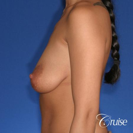 best breast lift anchor with silicone augmentation in Orange County - Before Image 2