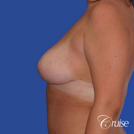 best breast reduction lift without implants newport beach -  After Image 2