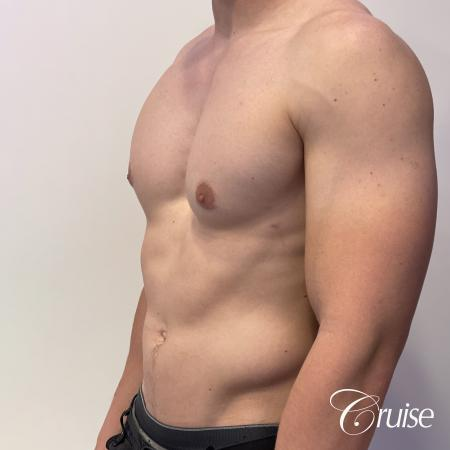 gynecomastia with puffy nipples -  After Image 3