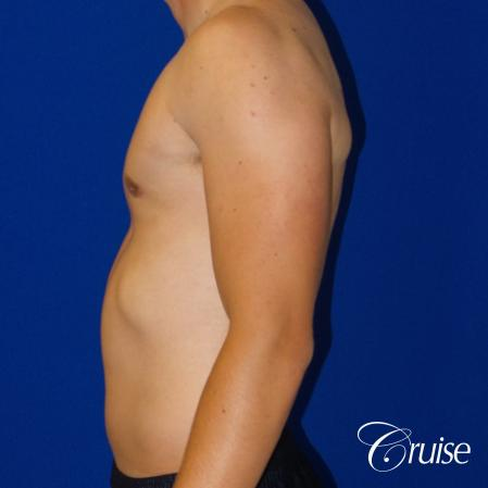 Best moderate gynecomastia on male adult -  After Image 2