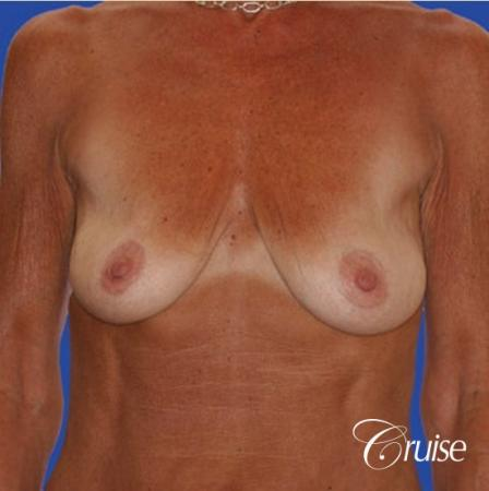 best results for breast lift in Orange County - Before Image 1