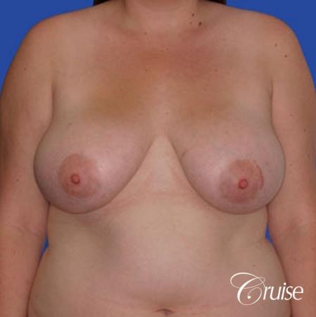 best breast reduction lift without implants newport beach - Before Image