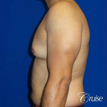 Best gynecomastia specialist in united states - Before Image 3