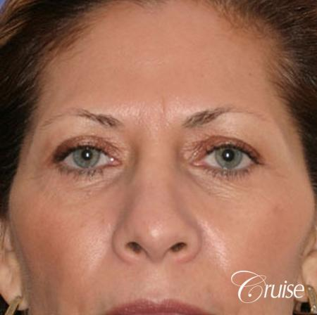 best woman temple lift scars Newport Beach - Before Image