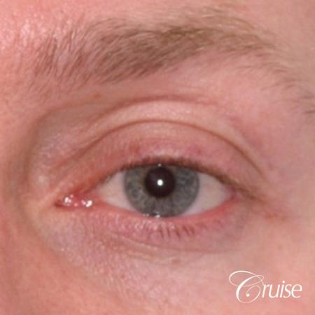 male soft tissue filler Juvaderm - Before Image