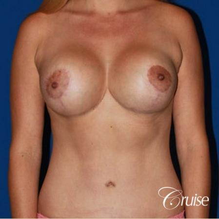 tummy tuck and saline breast lift with large implants on mommy makeover -  After Image 1