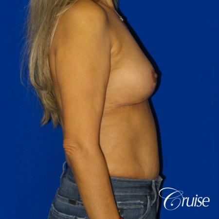 Best Breast reduction results and recovery -  After Image 4