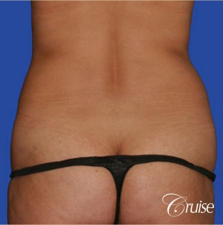 best flanks lipo before and after pictures - Before Image
