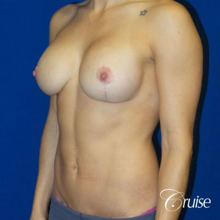 Breast Lift Anchor W/ Silicone Implants On Young Woman - After Image 3