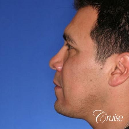 chin augmentation orange county -  After Image 2