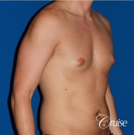 puffy nipple on low body fat - Before Image 4