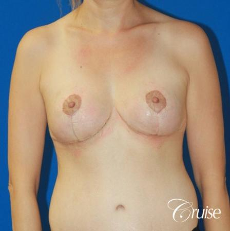 best reduction without implants in Newport Beach -  After Image 1