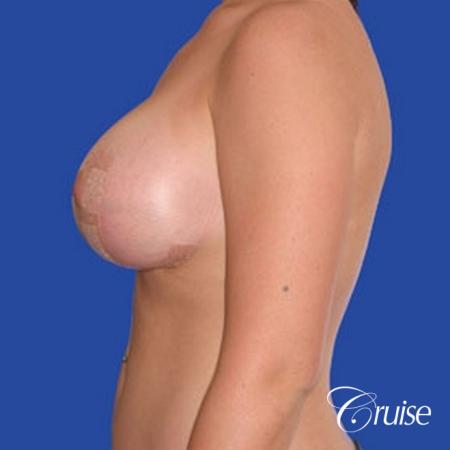 best photos of 20 yr old with saline breast reduction surgery -  After Image 2