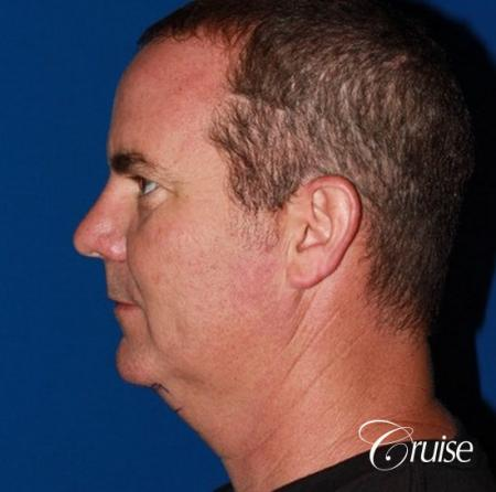 best pictures of chin augmentation with specialist - Before Image 2