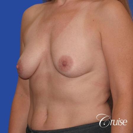 best breast lift donut scars in Newport Beach - Before Image 4