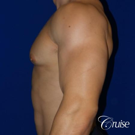 Body Builder Gynecomastia -Areola Incision - Before and After Image 3