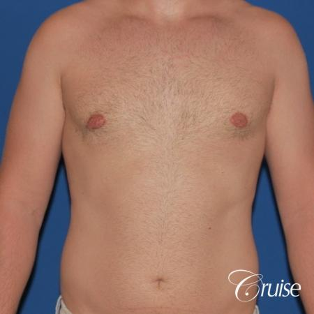best puffy nipple surgery correction -  After Image 1