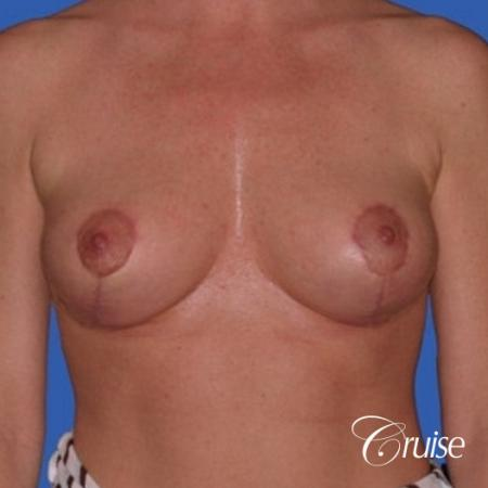 no implants with breast lift anchor -  After Image 1