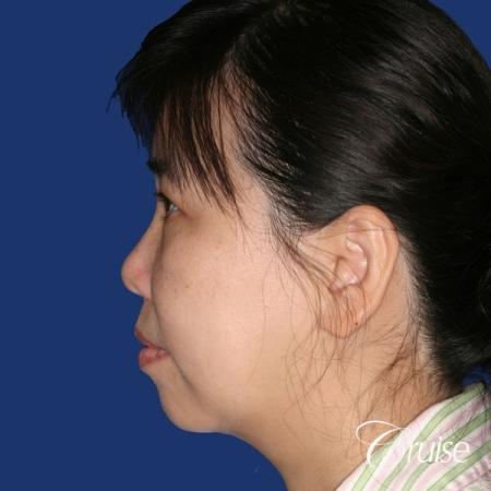best chin implant photos with large implant - Before Image 2