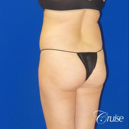 Brazilian Butt Lift - Before Image