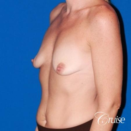 moderate profile saline breast lift anchor before and after pictures - Before and After Image 3