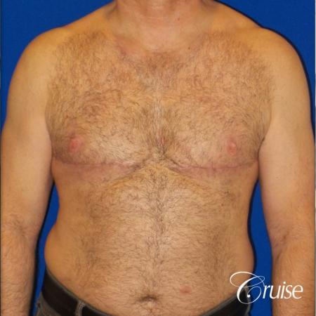 Severe Gynecomastia Correction -  After 1