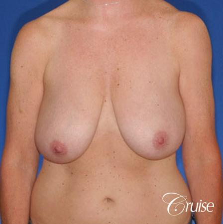 best breast reduction surgery with saline implants - Before Image 1