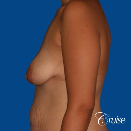 best breast lift anchor with saline augmentation - Before Image 2